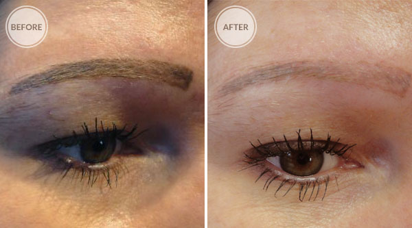 Laser Tattoo Removal Permanent Makeup Eyebrow