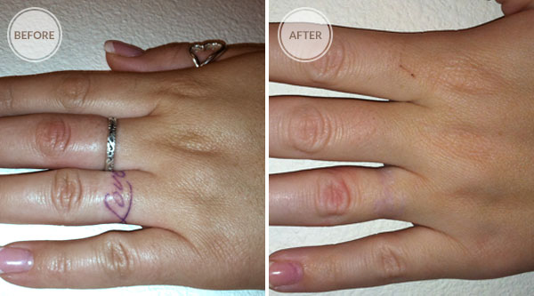 EliminInk Before and After Treatments Finger Tattoo