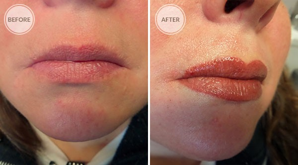 Full Lip Color Permanent Makeup