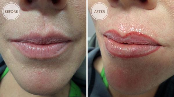 Lip Liner Permanent Makeup
