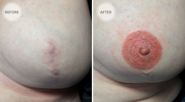 3D Areola Reconstruction Cosmetic Tattoo
